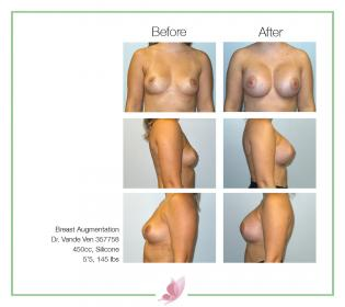 dr-vande-ven breast-augmentation 56