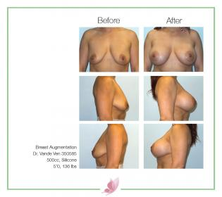 dr-vande-ven breast-augmentation 58