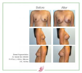 dr-vande-ven breast-augmentation 59