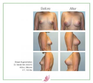 dr-vande-ven breast-augmentation 60