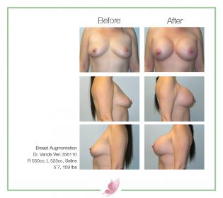 dr-vande-ven breast-augmentation 61