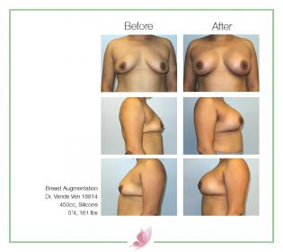 dr-vande-ven breast-augmentation 62
