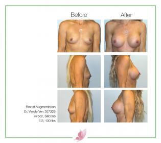 dr-vande-ven breast-augmentation 63
