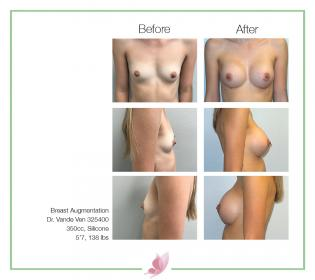 dr-vande-ven breast-augmentation 65