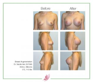 dr-vande-ven breast-augmentation 66