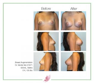 dr-vande-ven breast-augmentation 67