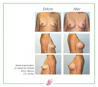 dr-vande-ven breast-augmentation 68