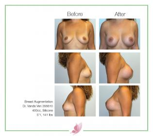 dr-vande-ven breast-augmentation 69