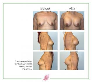 dr-vande-ven breast-augmentation 70