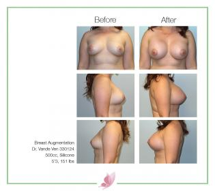 dr-vande-ven breast-augmentation 71