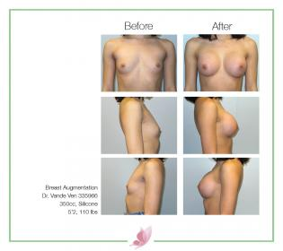 dr-vande-ven breast-augmentation 72