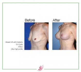 dr-curtis breast-lift 01