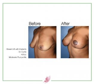 dr-curtis breast-lift 02