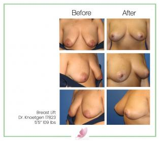 dr-knoetgen breast-lift 1