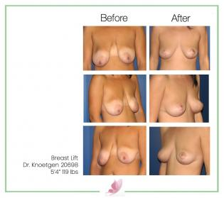 dr-knoetgen breast-lift 2