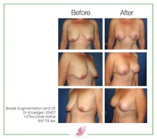 dr-knoetgen breast-lift 4
