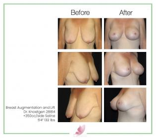 dr-knoetgen breast-lift 5
