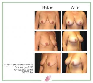 dr-knoetgen breast-lift 6