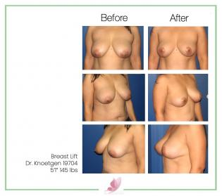 dr-knoetgen breast-lift 7