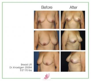 dr-knoetgen breast-lift 8