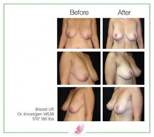 dr-knoetgen breast-lift 9