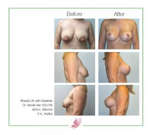 dr-vande-ven breast-lift 01
