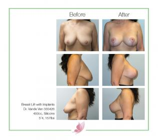 dr-vande-ven breast-lift 02