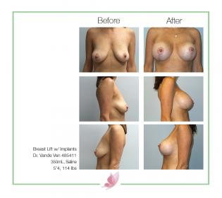 dr-vande-ven breast-lift 03