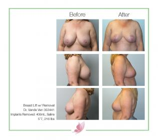 dr-vande-ven breast-lift 04