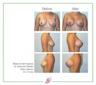 dr-vande-ven breast-lift 05