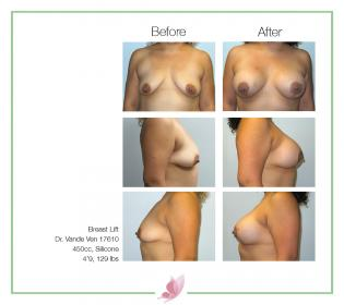 dr-vande-ven breast-lift 06