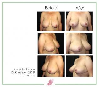 dr-knoetgen breast-reduction 1