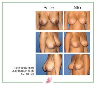 dr-knoetgen breast-reduction 2