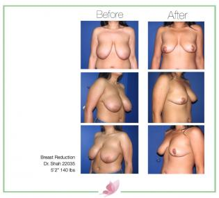 dr-shah breast-reduction 03