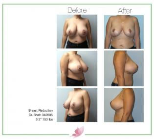 dr-shah breast-reduction 04