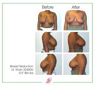 dr-shah breast-reduction 05