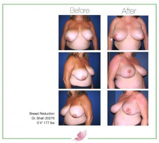 dr-shah breast-reduction 1