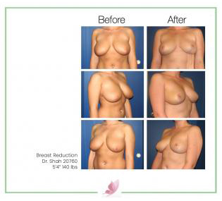 dr-shah breast-reduction 2