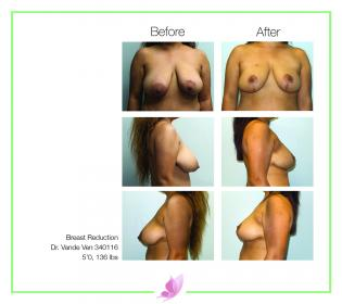 dr-vande-ven breast-reduction 01