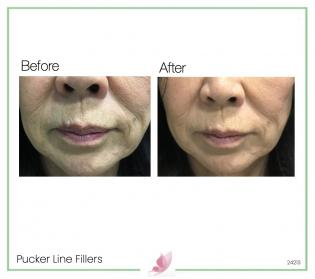 medical-aesthetics fillers 06