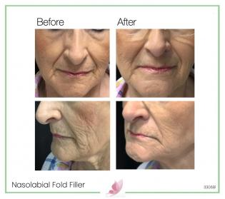 medical-aesthetics fillers 08
