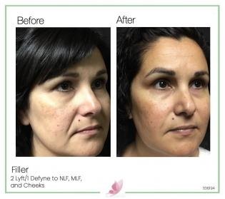 medical-aesthetics fillers 10