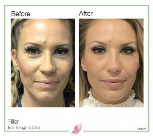 medical-aesthetics fillers 13