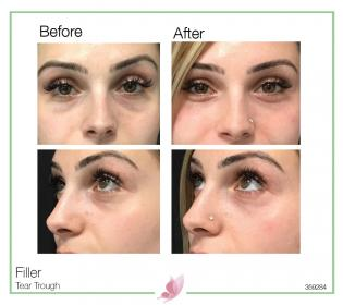 medical-aesthetics fillers 14